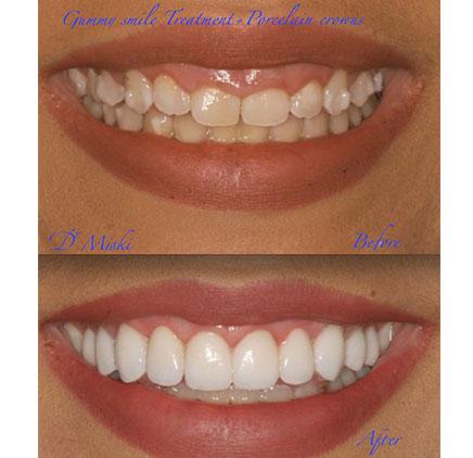 about best dentist in dubai