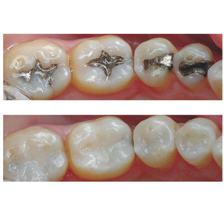about best dental clinic in dubai