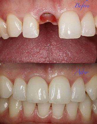 about dentist JLT