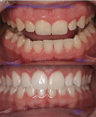 about teeth whitening dubai