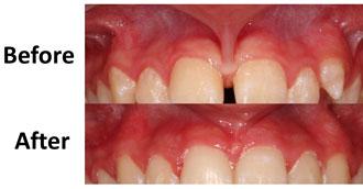 about dental implant dubai