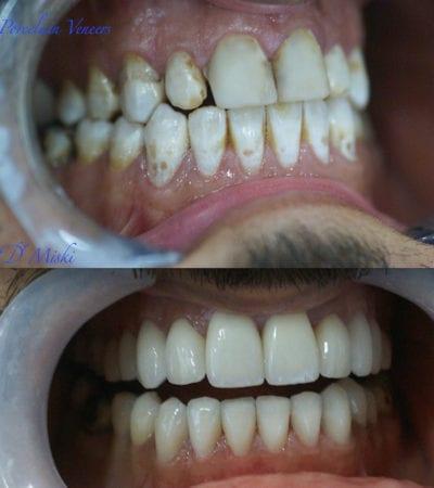 dentist dubai