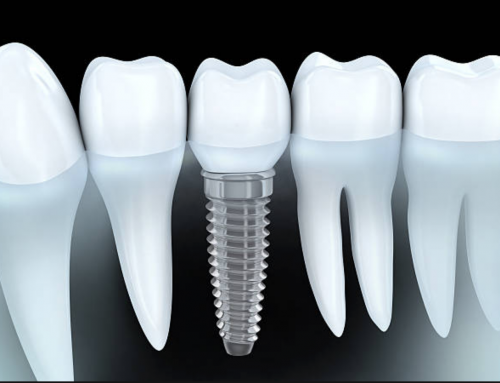 Am I a Candidate For Dental Implant?