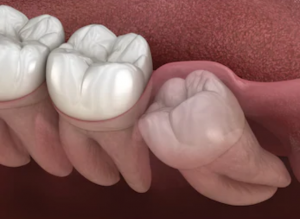 dental implant in Dubai