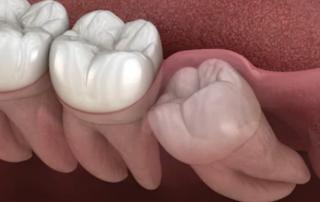 dental implant in Dubai