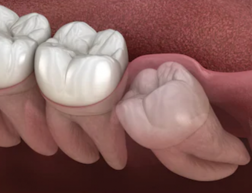 Wisdom Tooth Extraction: 8 Facts You Need to Know