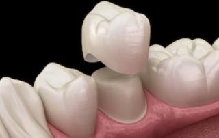 dental implant dubai