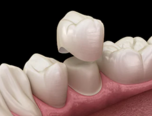 Do you always need a dental crown after root canal treatment?