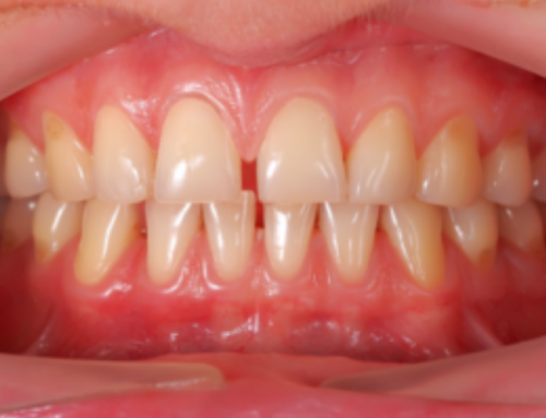 How to Fix Gaps between Teeth