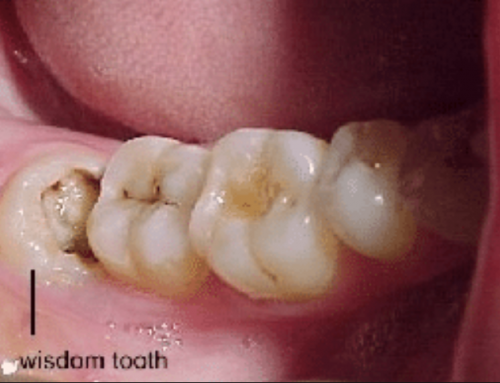 Is Wisdom Teeth Removal Necessary?