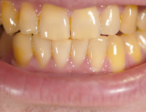 What Causes Yellow Teeth?