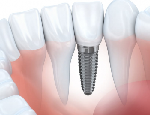 Immediate loading of Dental Implant