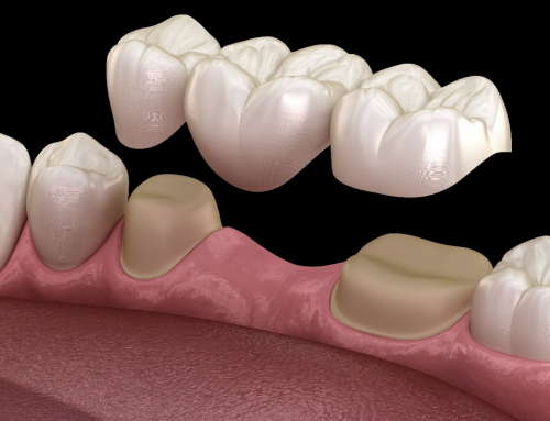 Dental Bridge, Benefits, Advantages and Disadvantages