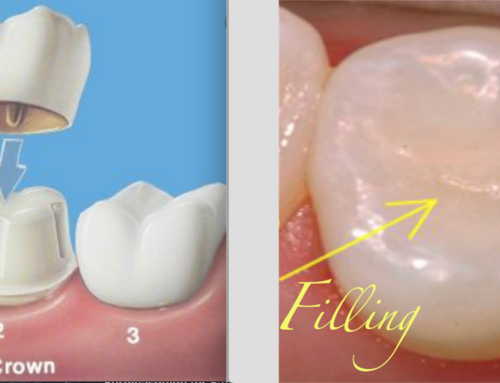 Differences Between Dental Crowns and Dental Fillings
