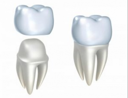Is Dental Crown needed After Root Canal Treatment?