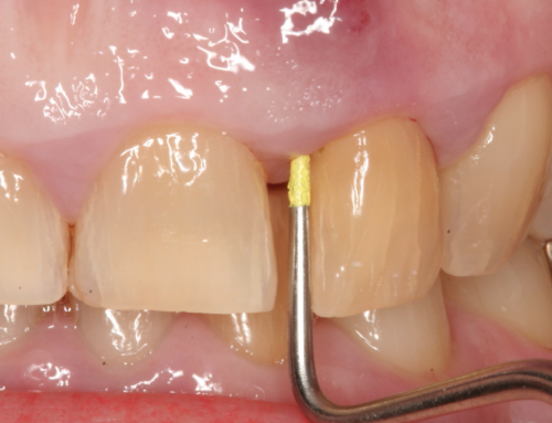What is Periodontal Abscess?!